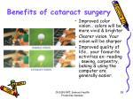 benefits of cataract surgery