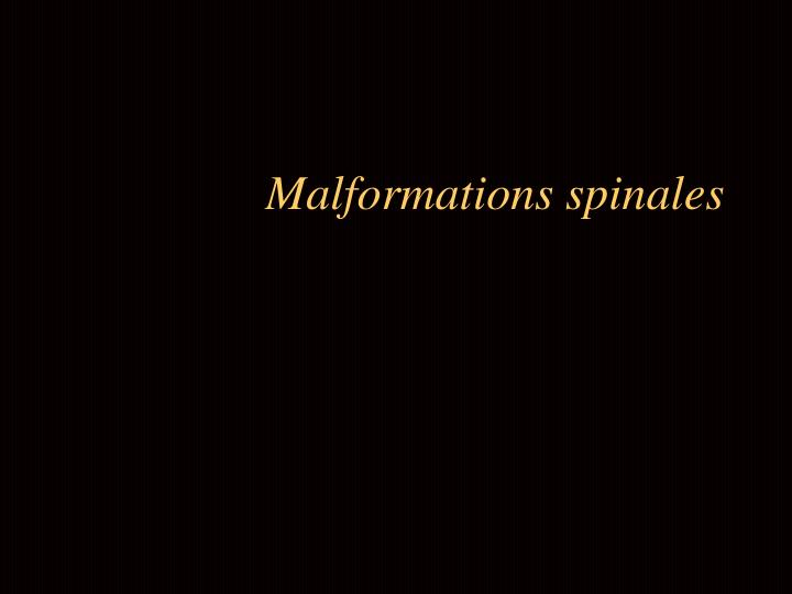 malformations spinales n.