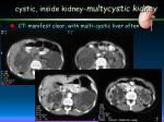 cystic inside kidney multycystic kidney4