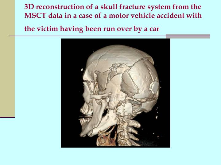 3D reconstruction of a skull fracture system from the MSCT data in a case of a motor vehicle accident with the victim having been run over by a car