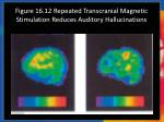 figure 16 12 repeated transcranial magnetic stimulation reduces auditory hallucinations