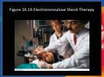 figure 16 16 electroconvulsive shock therapy