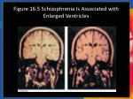 figure 16 5 schizophrenia is associated with enlarged ventricles