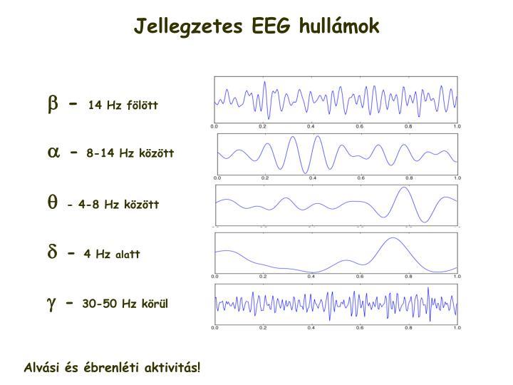Jellegzetes EEG hullámok