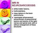 mri in neurosarcoidosis