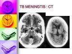 tb meningtis ct