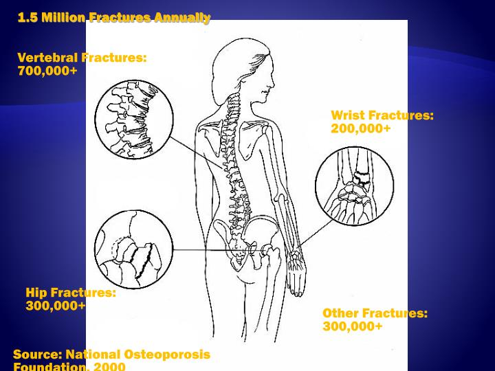 1.5 Million Fractures Annually