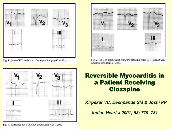 Reversible Myocarditis in a Patient Receiving Clozapine