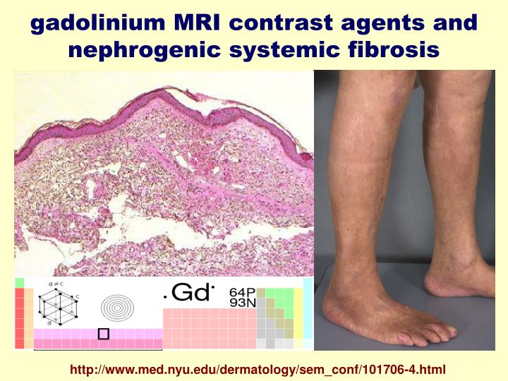 gadolinium MRI contrast agents and nephrogenic systemic fibrosis