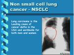 non small cell lung cancer nsclc