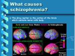 what causes schizophrenia1