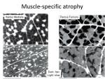 muscle specific atrophy