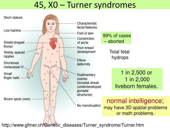 45, X0 – Turner syndromes