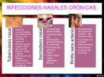 infecciones nasales cr nicas