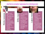 infecciones nasales cr nicas1