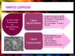 rinitis leprosa
