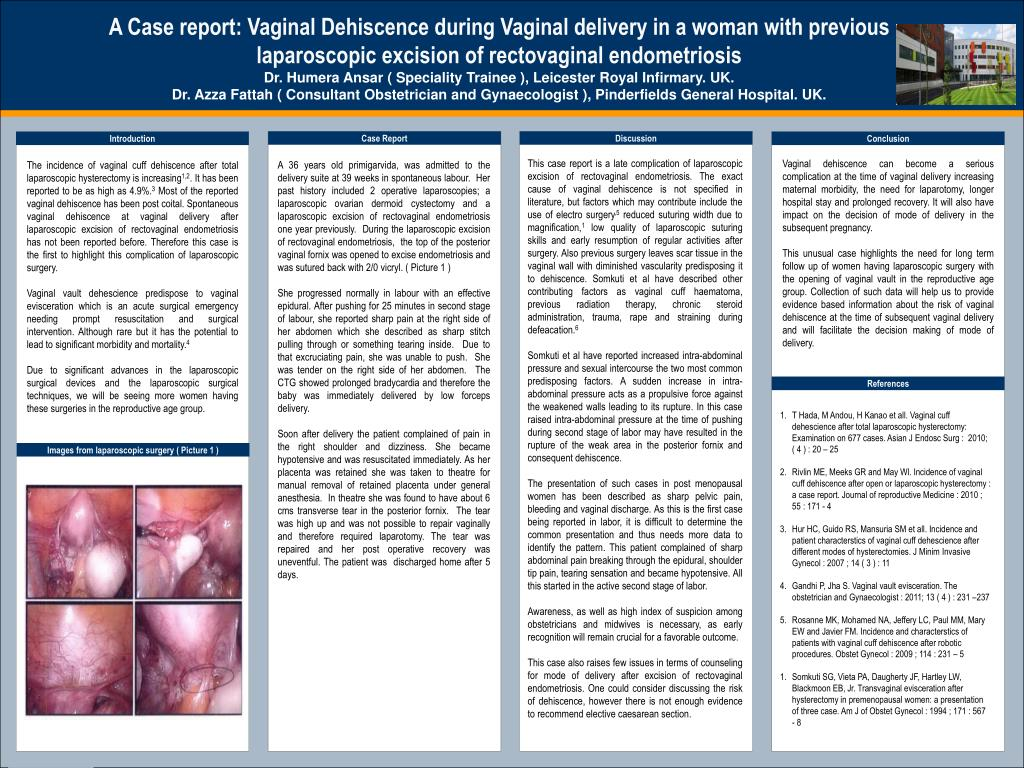Incidence And Prevention Of Vaginal Cuff Dehiscence After Laparoscopic And Robotic Hysterectomy