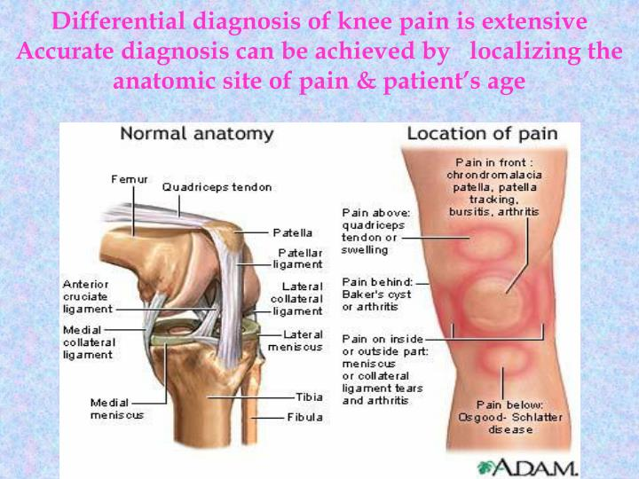 PPT - Knee injuries PowerPoint Presentation - ID:3923475