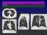 neumon a eosin fila cr nica1