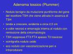 adenoma tossico plummer