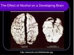 the effect of alcohol on a developing brain1