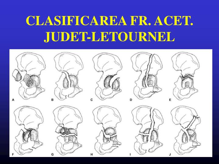 CLASIFICAREA FR. ACET. JUDET-LETOURNEL
