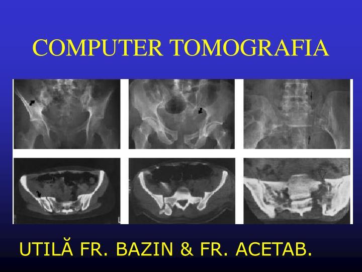 COMPUTER TOMOGRAFIA