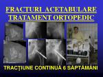 fracturi acetabulare tratament ortopedic2
