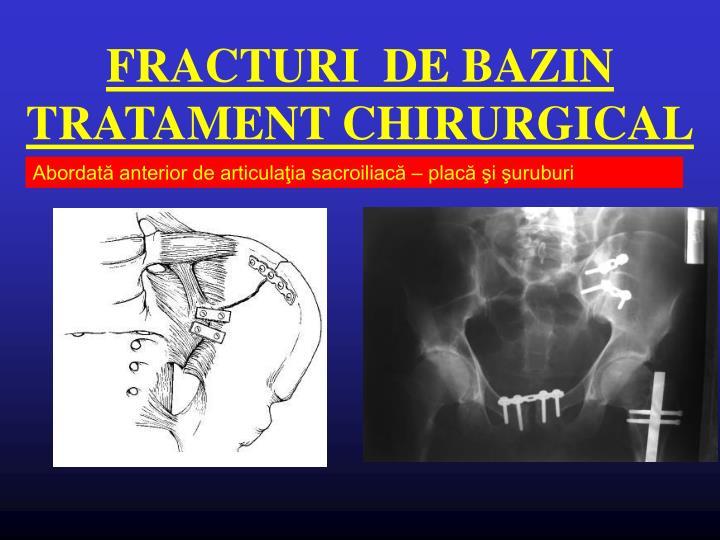 FRACTURI  DE BAZIN TRATAMENT CHIRURGICAL