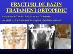fracturi de bazin tratament ortopedic2