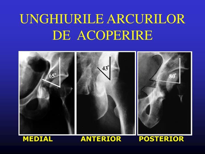 UNGHIURILE ARCURILOR DE  ACOPERIRE