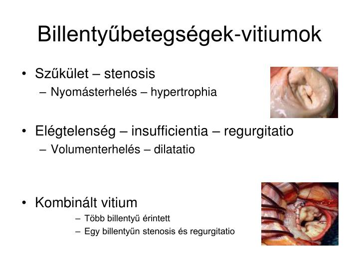 Billentyűbetegségek-vitiumok