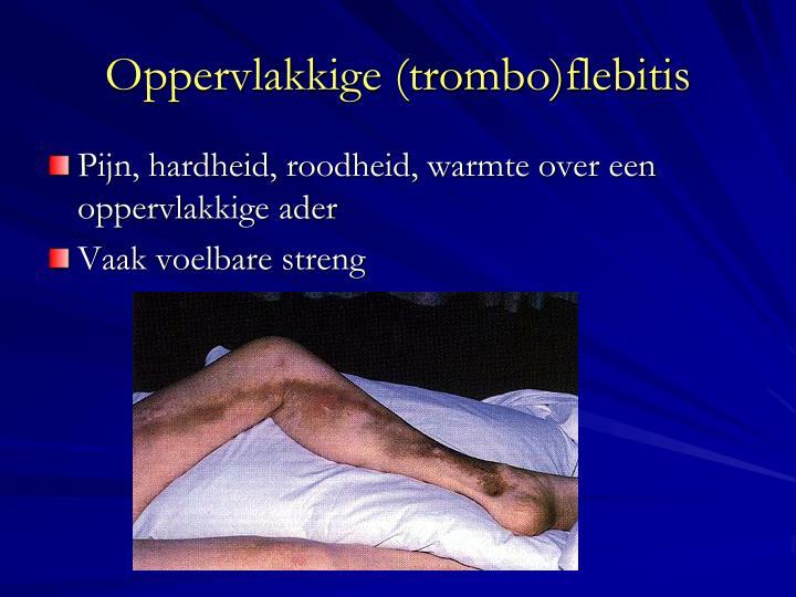 Oppervlakkige trombo flebitis