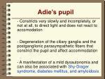 adie s pupil