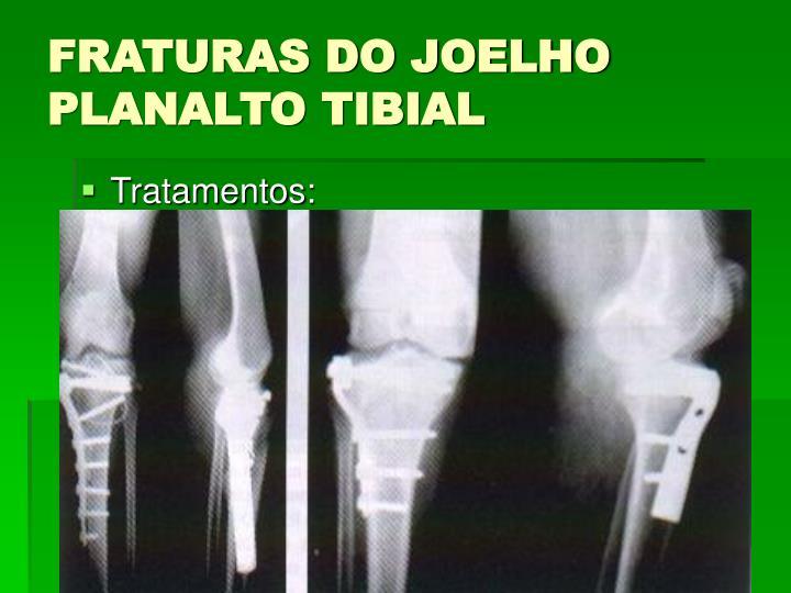 Fraturas do joelho planalto tibial1
