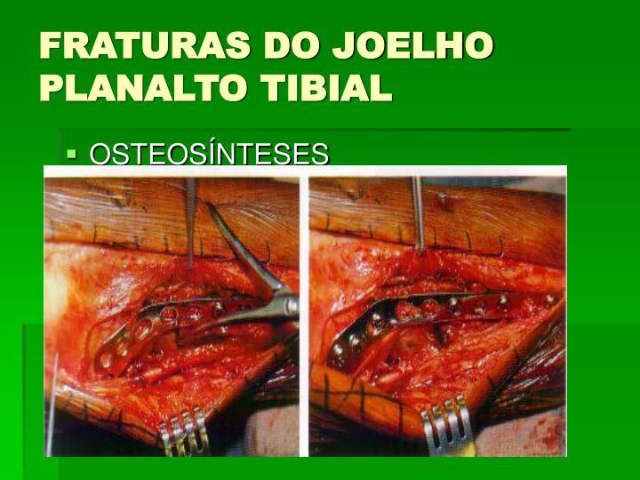 FRATURAS DO JOELHO