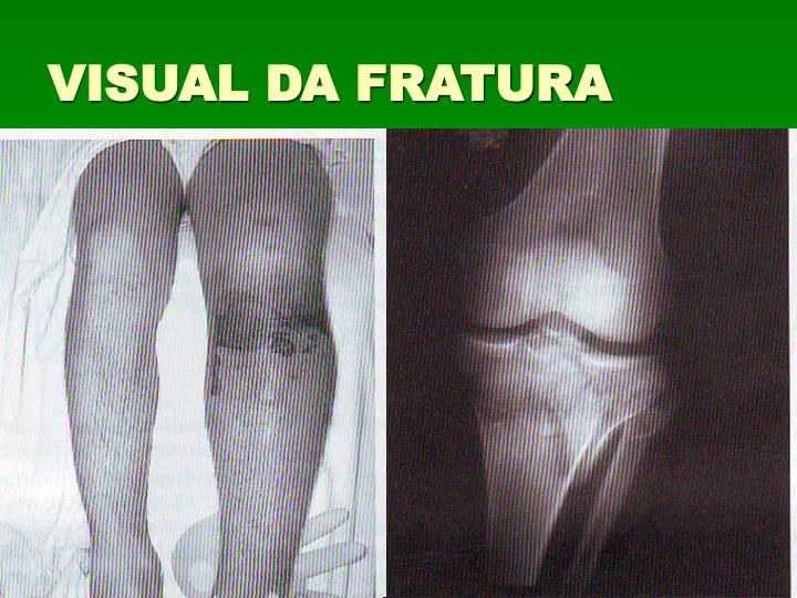 VISUAL DA FRATURA