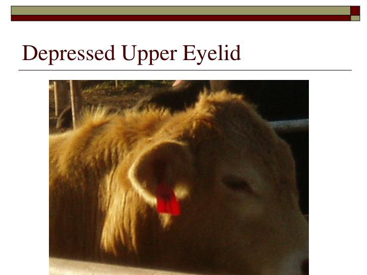 Depressed Upper Eyelid
