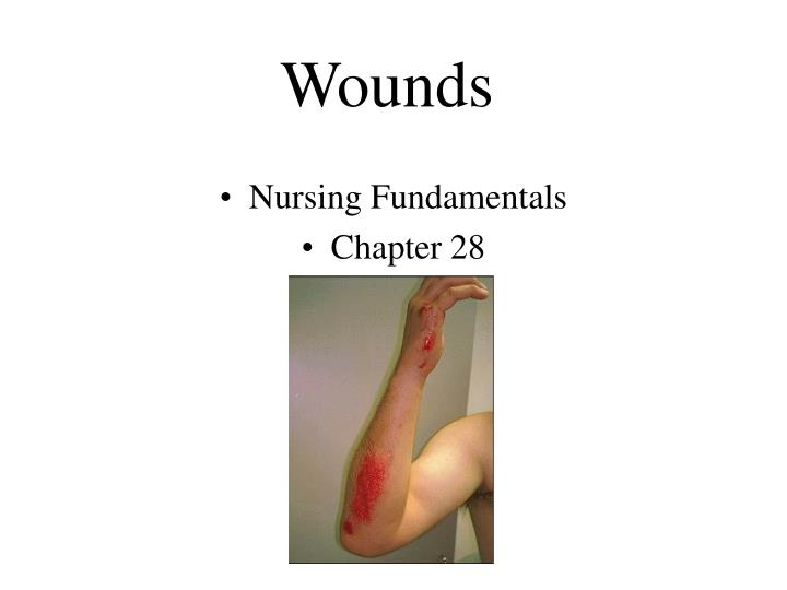 wounds n.