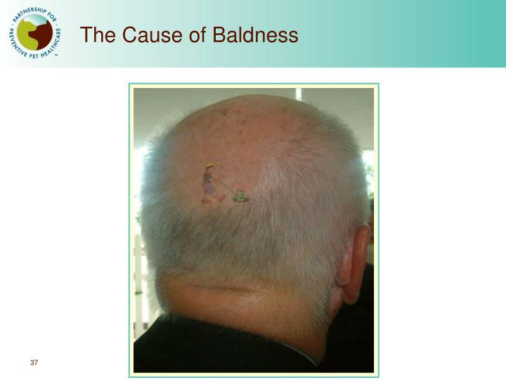 The Cause of Baldness