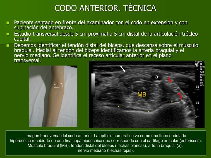 PPT - ANATOMÃ A NORMAL DEL CODO PowerPoint Presentation - ID:3995052