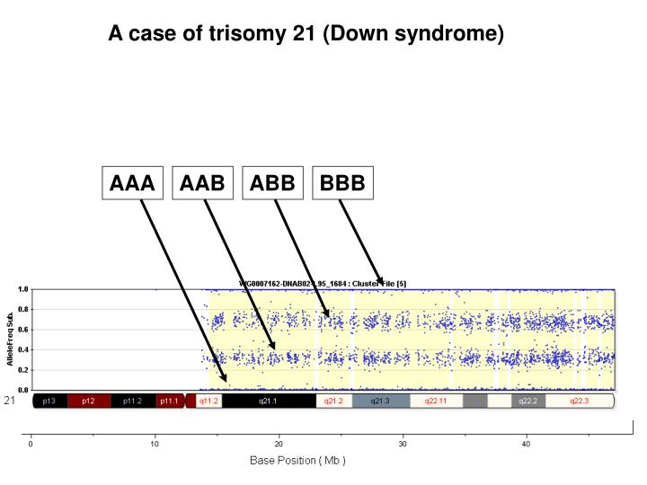 A case of trisomy 21 (Down syndrome)