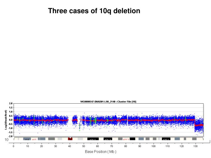 Three cases of 10q deletion