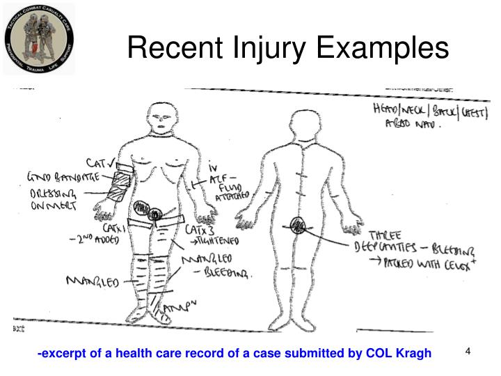 Recent Injury Examples