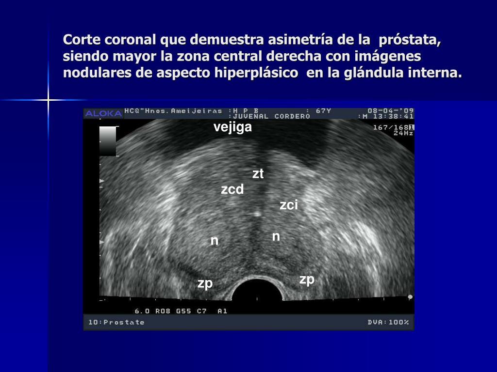 imágenes de ultrasonido de calcificación de la próstata