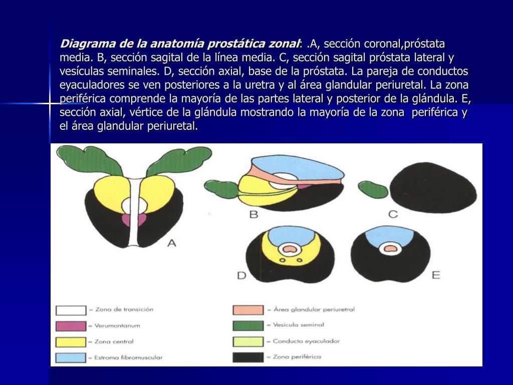 áreas de la próstata periférica