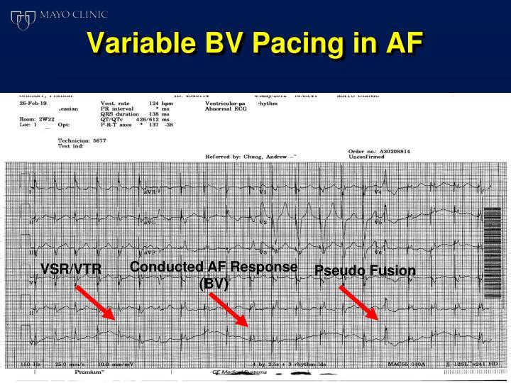 Variable BV Pacing in AF