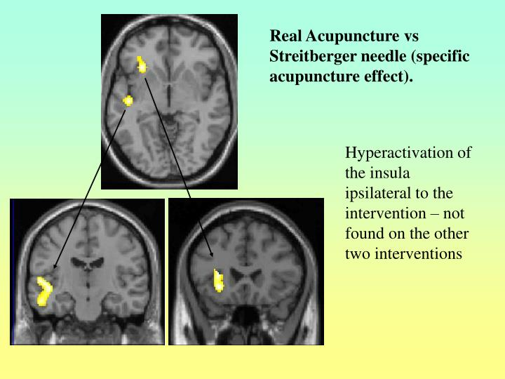 Real Acupuncture vs Streitberger needle (specific acupuncture effect).