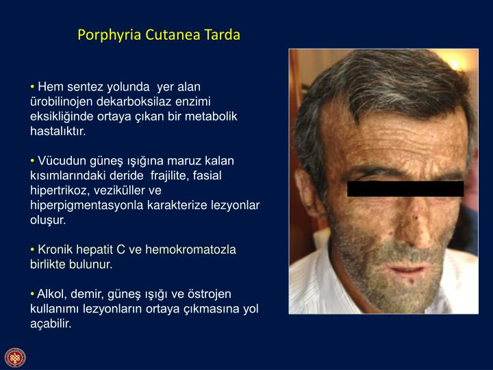 porphyria cutanea tarda essay Porphyria cutanea tarda, hepatitis c, alcoholism, and hemochromatosis: a case report and review of the literature cutis 200473:188-190 //wwwncbinlmnihgov/pubmed/15074347 bygum a, christiansen l, petersen ne, et al familial and sporadic porphyria cutanea tarda: clinical, biochemical and genetic.