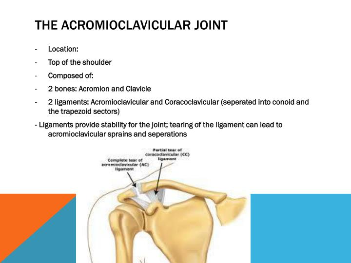 Ppt Acromioclavicular Joint Injuries Shoulder Separation